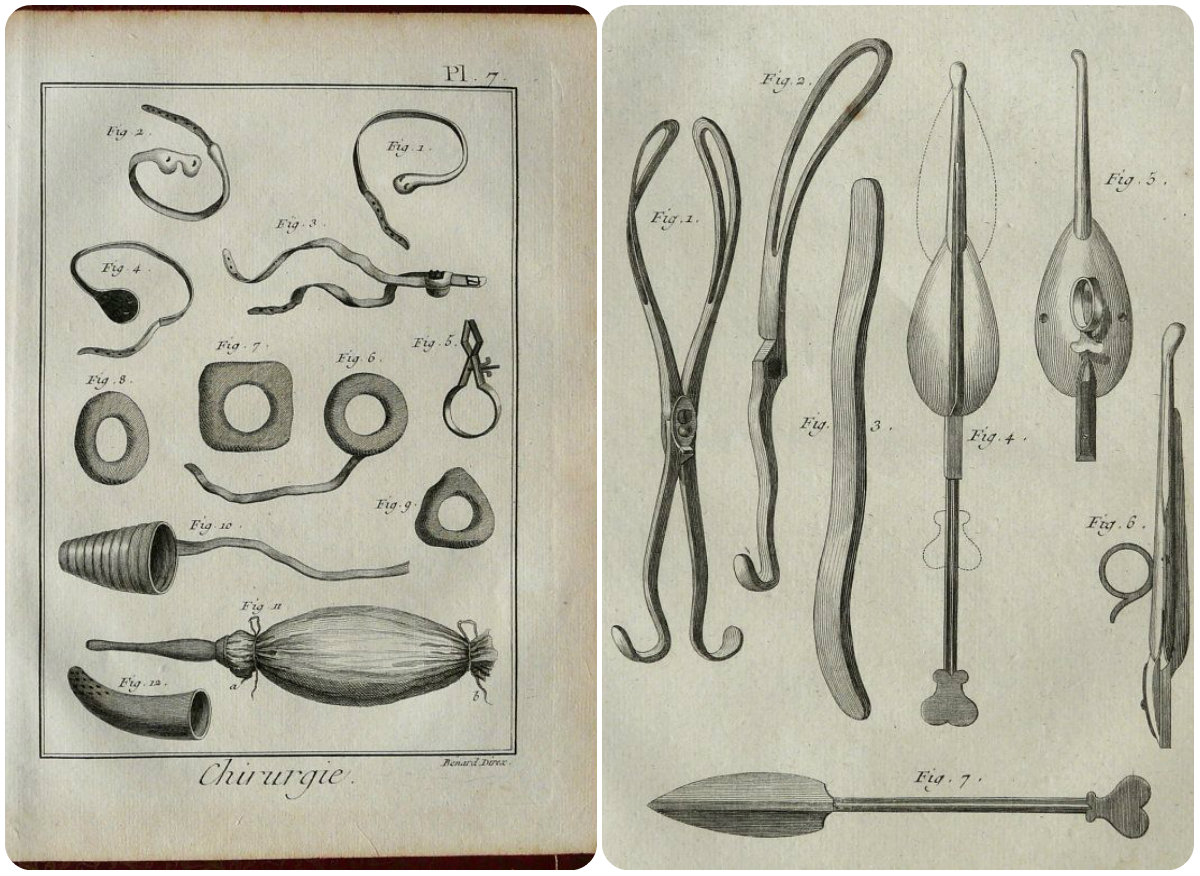 historia medycyny, ginekologia, instrumenty